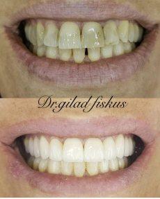 """תמונה 10 של ד""""ר גלעד פיסקוס הלבנת שיניים לחתונה - טיפולי יופי וקוסמטיקה"""