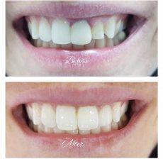 """תמונה 9 של ד""""ר גלעד פיסקוס הלבנת שיניים לחתונה - טיפולי יופי וקוסמטיקה"""