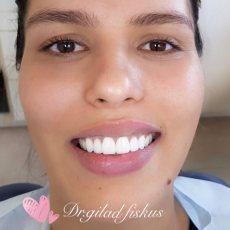 """תמונה 6 של ד""""ר גלעד פיסקוס הלבנת שיניים לחתונה - טיפולי יופי וקוסמטיקה"""