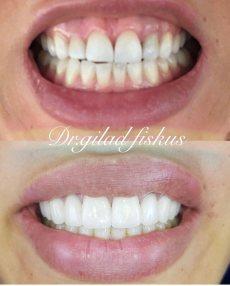 """תמונה 5 של ד""""ר גלעד פיסקוס הלבנת שיניים לחתונה - טיפולי יופי וקוסמטיקה"""