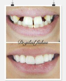 """תמונה 1 של ד""""ר גלעד פיסקוס הלבנת שיניים לחתונה - טיפולי יופי וקוסמטיקה"""
